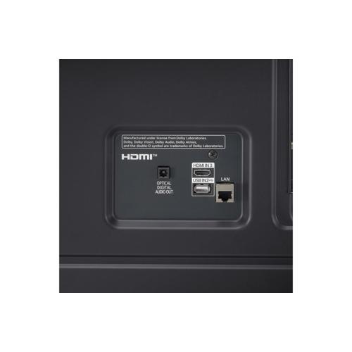 Gallery - LG NanoCell 75 Series 2021 75 inch 4K Smart UHD TV w/ AI ThinQ® (74.5'' Diag)